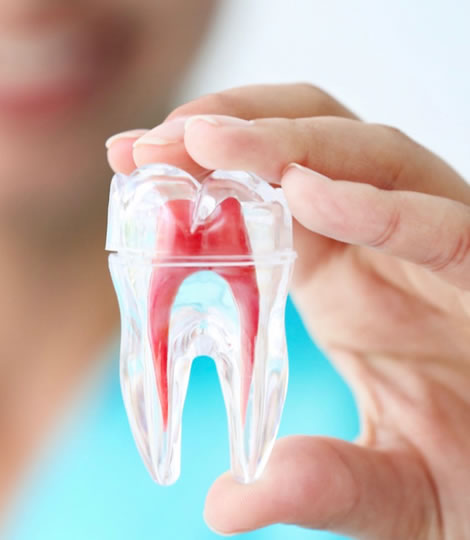 Best Root Canal Treatment in Pune | Affordable Root Canal Treatment | Smilex